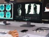 Maleńki robot poda lek bezpośrednio doguza nowotworowego