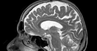 rozwoj-choroby-parkinsona-sztuczna-inteligencja-pomaga-badania