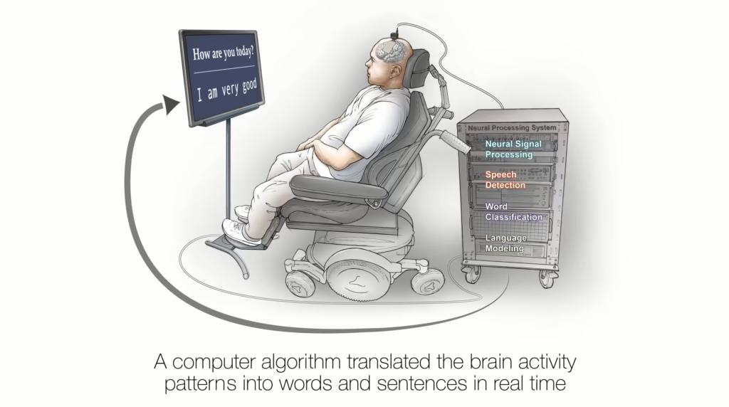 Neuroproteza UCSF